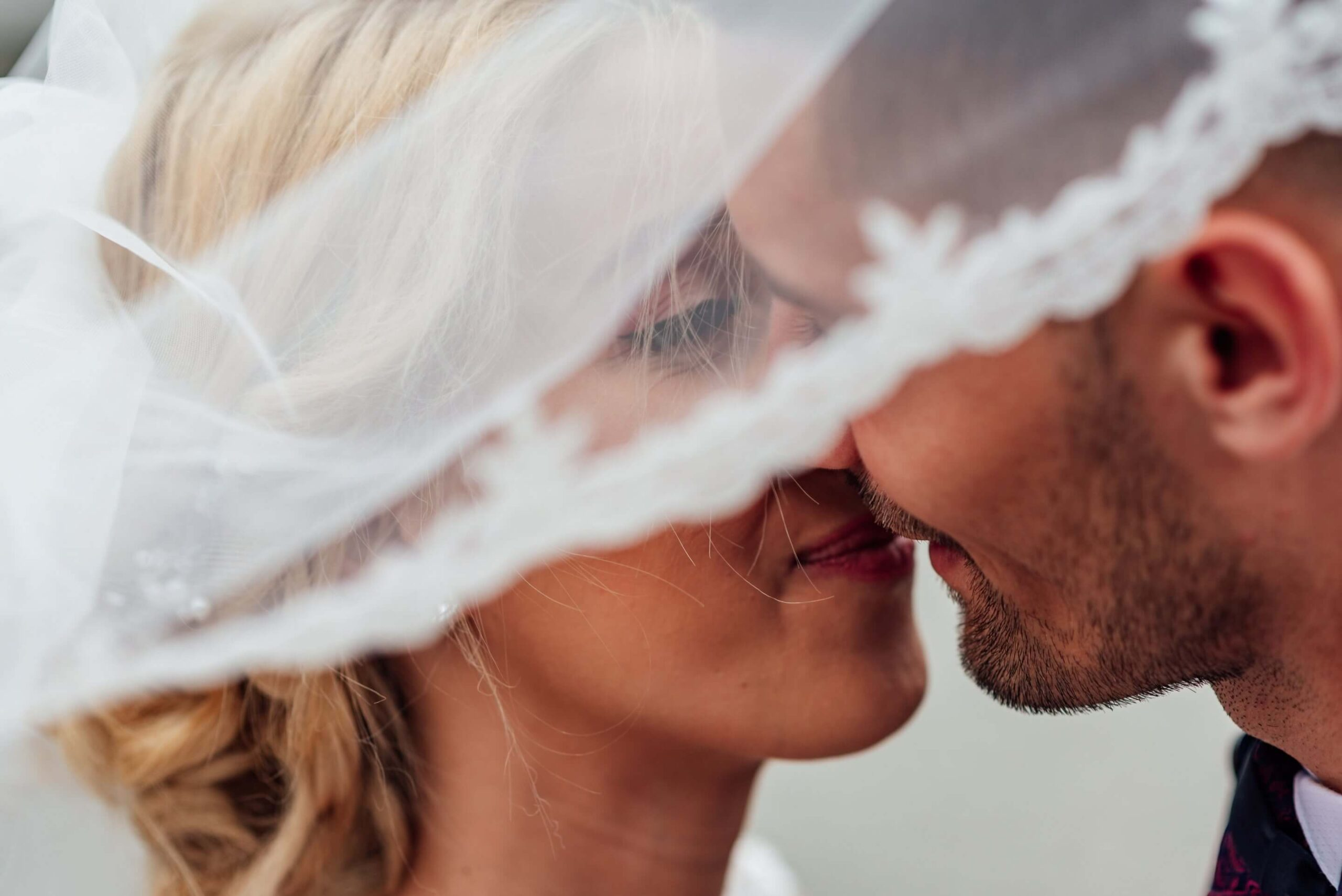 wedding day clear skin